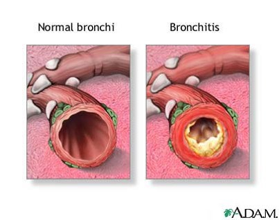 Photo on right shows chronic bronchitis due to inflammation and there is yellow mucus inside the airway