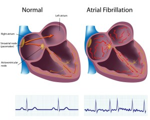 Normal electrical activity on left and atrial fibrillation on right.