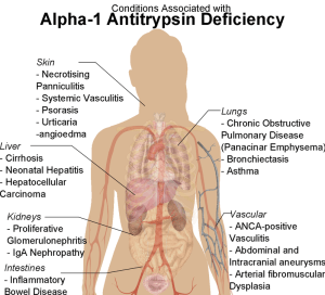 These conditions do not occur in a carrier for alpha-1 antitrypsin deficiency