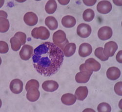 A microscopic view of a blood smear shows an eosinophil (an inflammatory cell) n the center surrounded by smaller red blood cells.