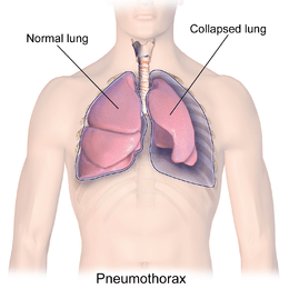 Diagram of pneumothorax in left lung