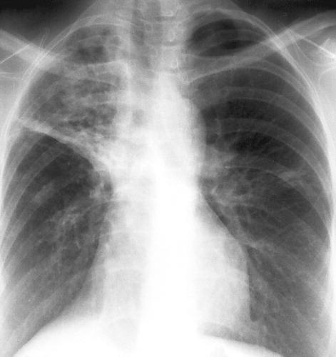 bronchiectasis Articles – Dr  Mahler