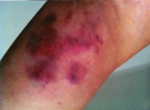 Photo showing police brutality injuries during arrest.