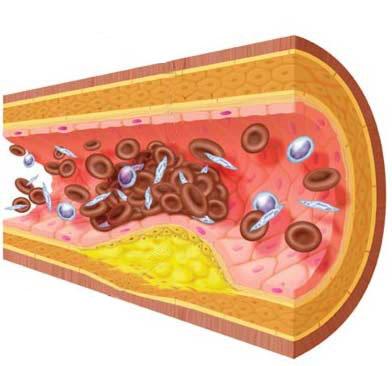 Saiba Sobre o Bom e Mau Colesterol