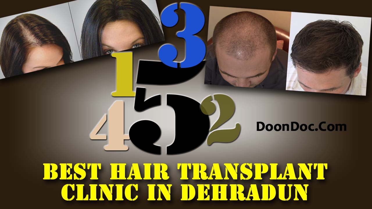 Best Hair Transplant Clinic in Dehradun -Top 5 Clinics with Awesome result