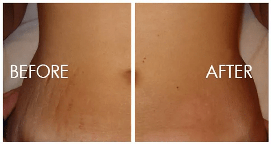 stretch-marks-removal-in-dehradun-procedure-benefits-cost