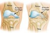 घुटने का प्रत्यारोपण, आर्थ्राइटिस से मुक्ति By Soma Ghosh
