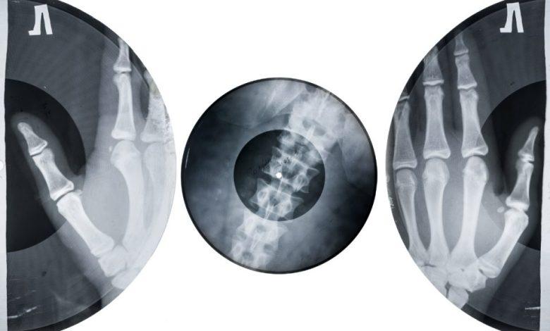 rentgenskih slikah, apartheida, Sovjetski zvezi, Rentgenski avdio, piratstvo, Sovjetska zveza, Cenzura,
