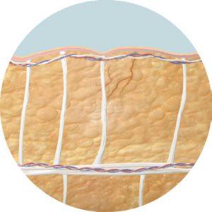 cellfina before