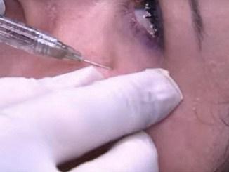 ampire Face Lifting per rinfrescare i tratti del volto Iniezioni di sangue venoso prelevato dallo stesso paziente