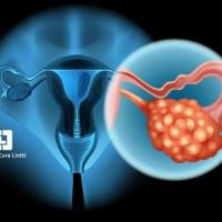 Cancro ovaio resistente, scoperto ruolo proteina chiave è la CD73