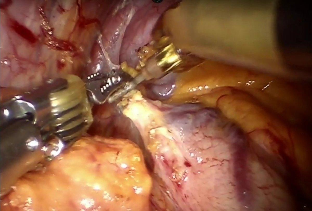 Acalasia esofagea e miotomia per via laparoscopica o robotica integrata [VIDEO]