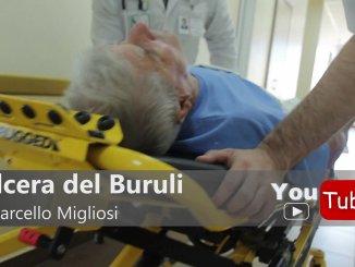 Ulcera del Buruli, malattia rara, è epidemia in Australia, ma che cos'è? Come si cura? [Video]
