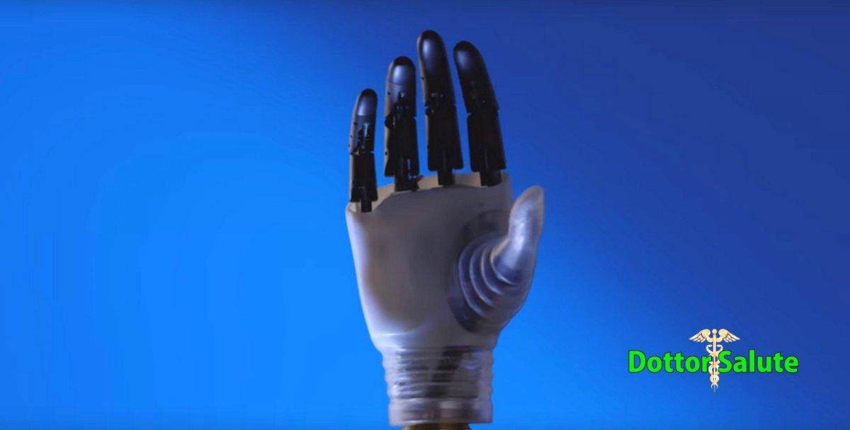 Hannes è la mano bionica del futuro, pronta per il 2019 ed è italiana [Video]