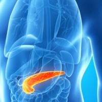 Tumore pancreas, trattamento di ablazione Elettroporazione Irreversibile IRE a Terni