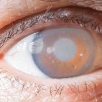 Glaucoma epidemia silenziosa che colpisce seconda e terza età, meglio controllare