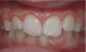 traumi dentali - prima
