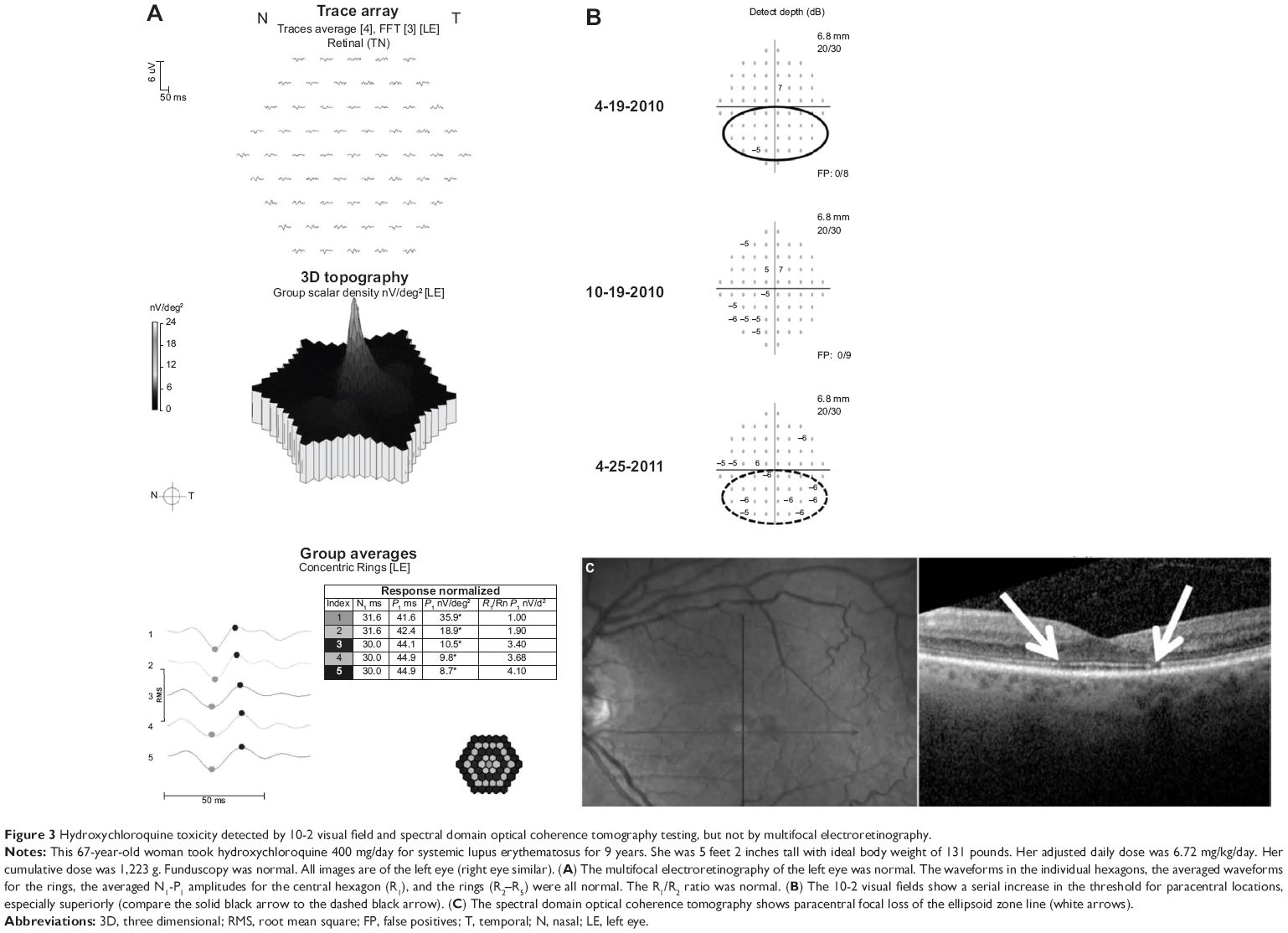 Full Text Relative Sensitivity And Specificity Of 10 2 Visual Fields Multifocal