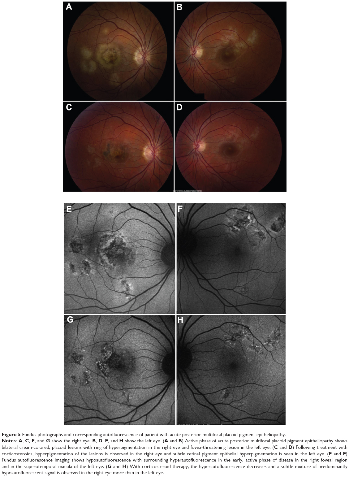 Full Text Fundus Autofluorescence Features In The