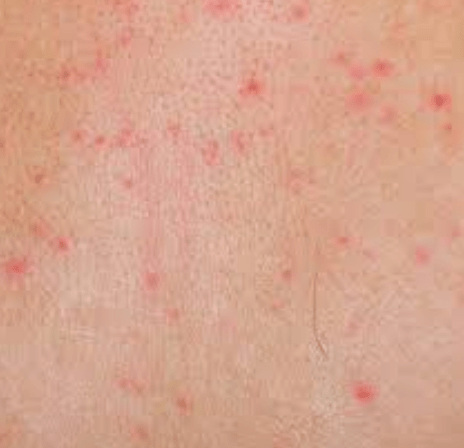 red dots on skin dorothee padraig south west skin health care