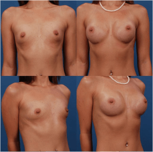 Allergan Silicone Breast Implant Size Result