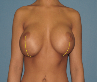 Bottoming Out Nipple Stretching After Breast Augmentation Surgery
