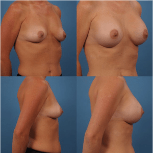 Silicon Breast Implant Patient 3