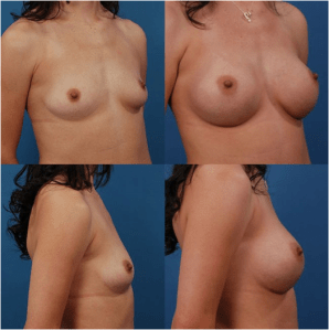 Silicon Breast Implant Size Patient 4
