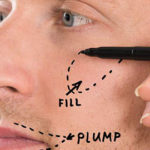 ​Plastic Surgery for Men on the Rise
