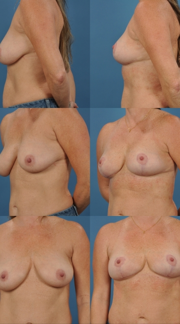 Breastlift with Mesh- Case I