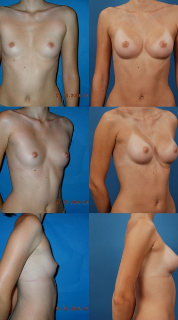 Breast Augmentation – Asymmetry Case F