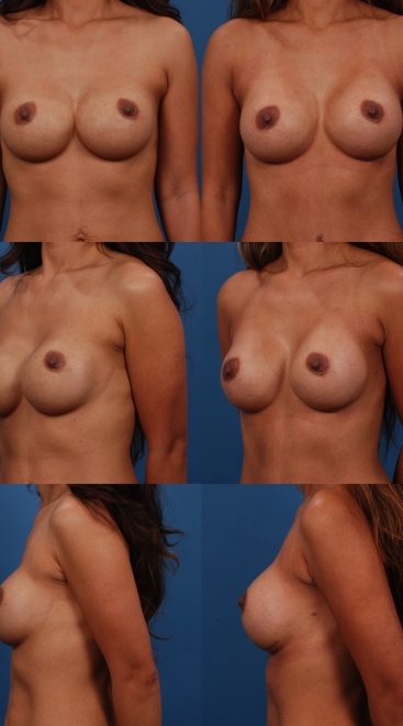 Breast Augmentation Revision- Case B
