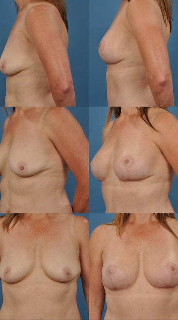 Augmentation with Breast Lift- Case 12
