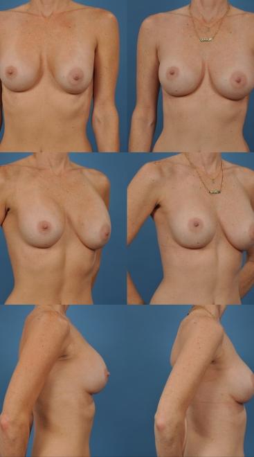 Breast Augmentation Revision Case I
