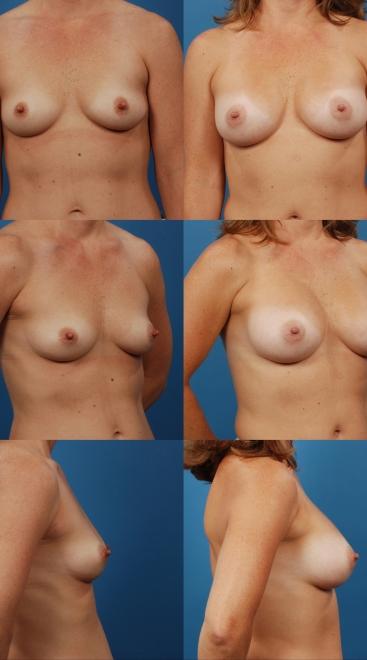 Breast Augmentation- Case 47