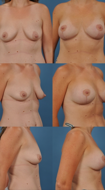 Augmentation with Breast Lift- Case 10