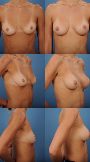 Breast Augmentation- Case 65