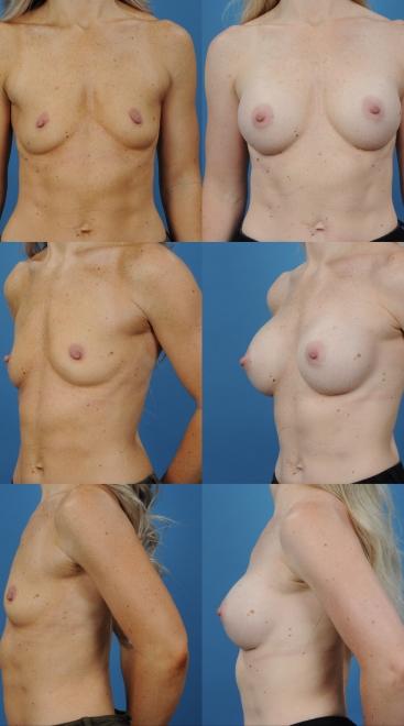 Breast Augmentation- Case 1