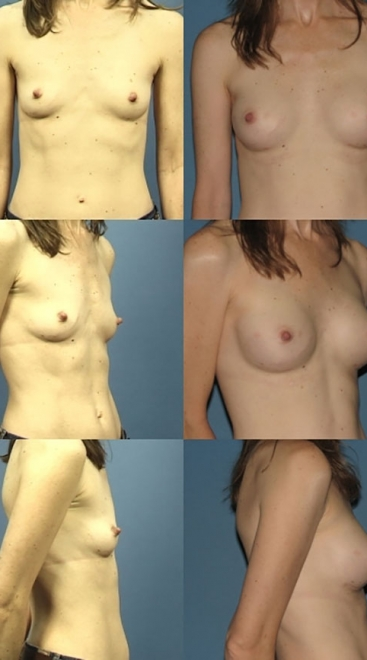 Form Stable Breast Implants Case I