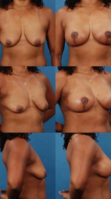 Augmentation with Breast Lift- Case 4