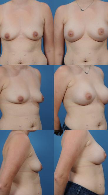 Breast Augmentation- Case 61