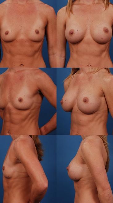 Breast Augmentation – Case 5