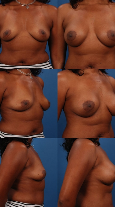 Breast Augmentation – Asymmetry Case D