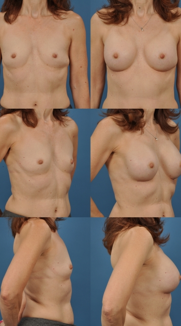 Breast Augmentation – Case 46