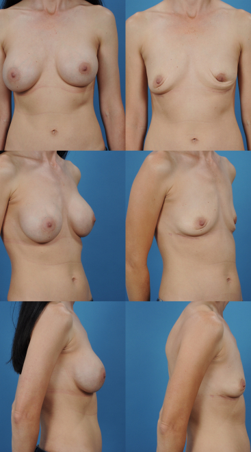 Breast Implant Removal- Case 5