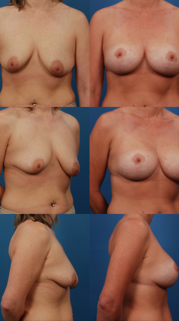 Augmentation with Mastopexy- Case 14