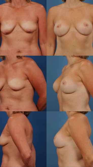 Augmentation with Breast Lift- Case 3