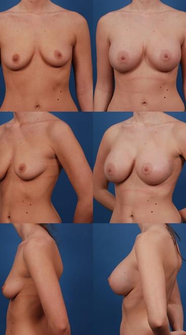 Breast Augmentation – Case 18