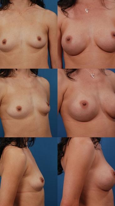 Breast Augmentation – Case 49