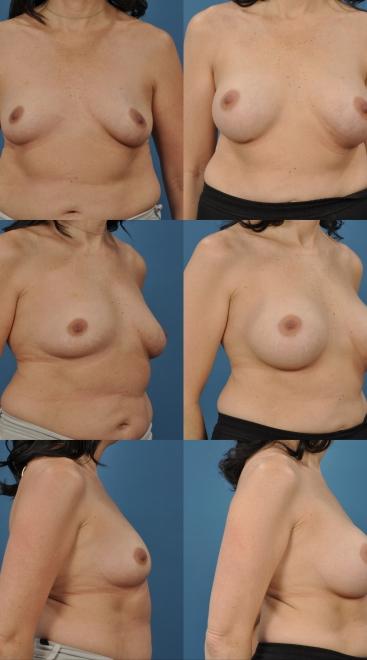 Breast Augmentation- Case 51